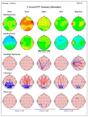 NeuroGuide